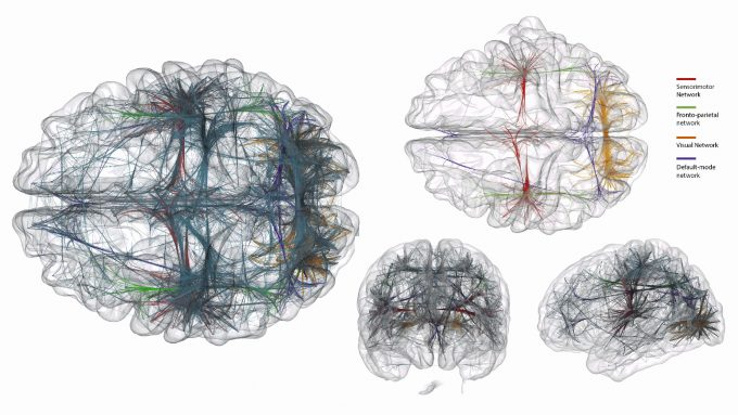 brain-connection-visualization